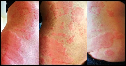 Endless Itch: Dealing With Chronic Hives