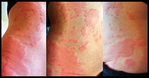 Looks hickey like that rash a strange rash
