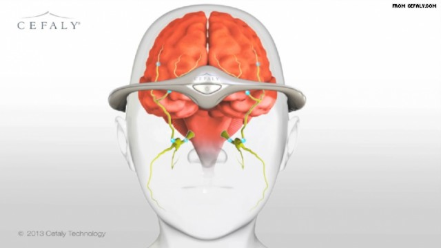 Can A New Device, Cefaly®, Help to Prevent Migraines?