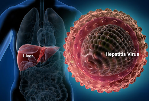 What You Need To Know About Hepatitis A