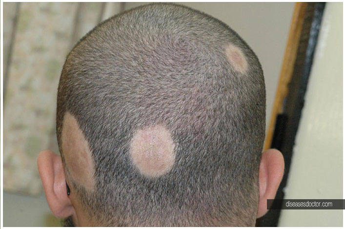 Hair Spotlight: What You Need to Know About Alopecia Areata