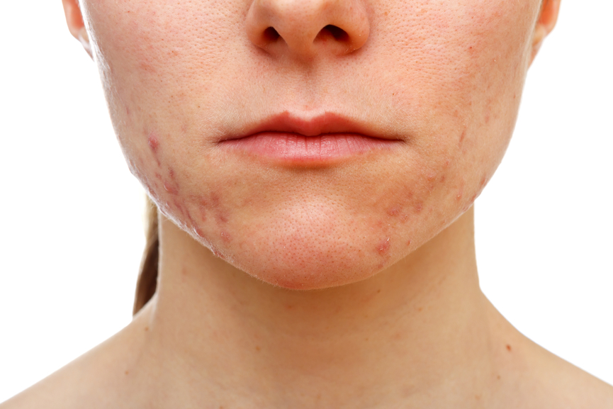 The Dirt on Skin Health: Adult-Onset Acne!