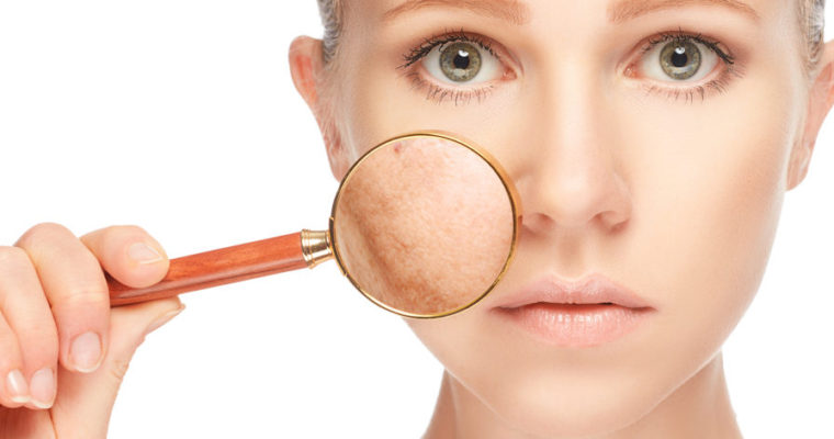 Acne Does Not Differentiate! What To Do To Prevent A Breakout