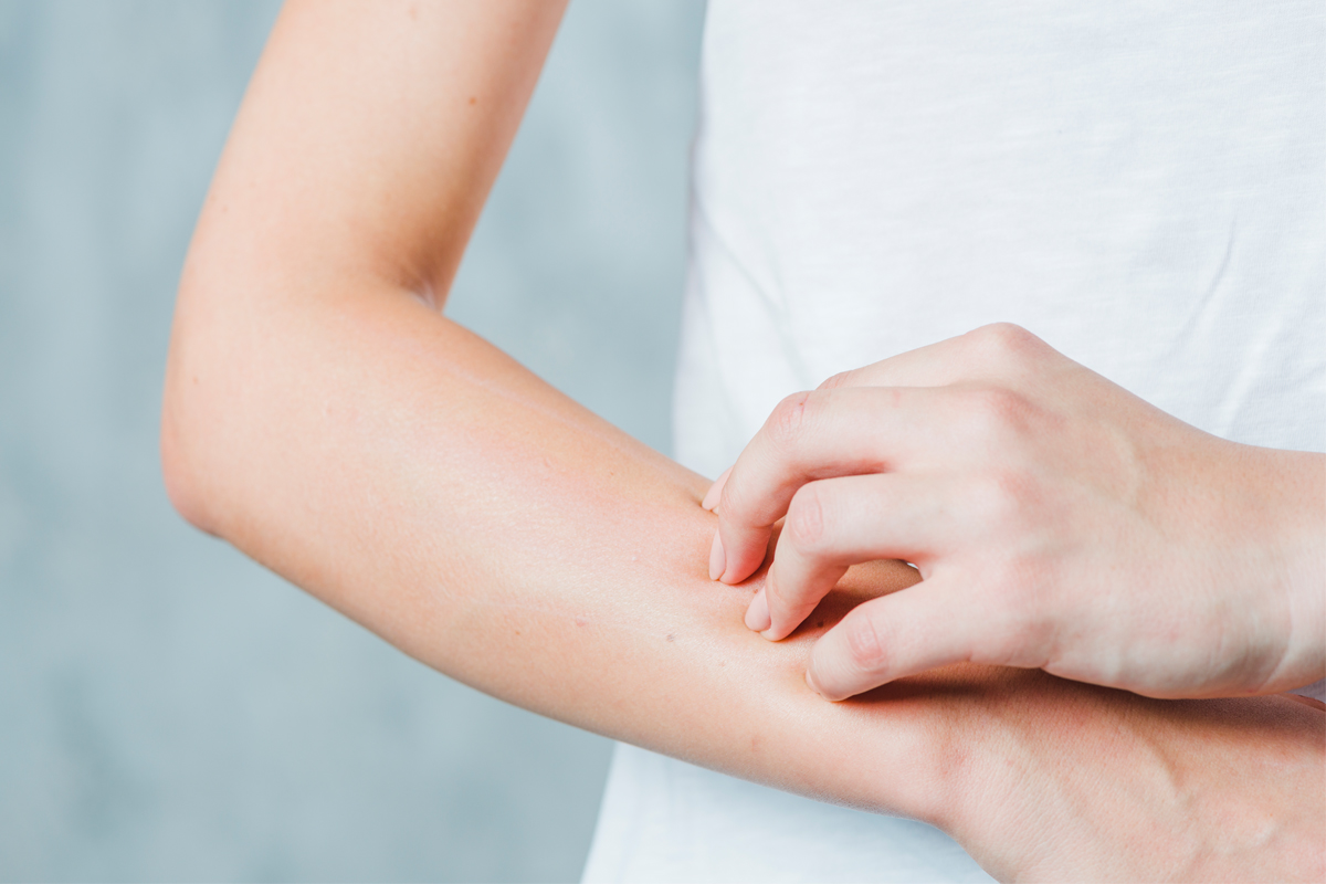 New Study: High Levels of Salt May Cause of Allergic Immune Reactions, Like Eczema