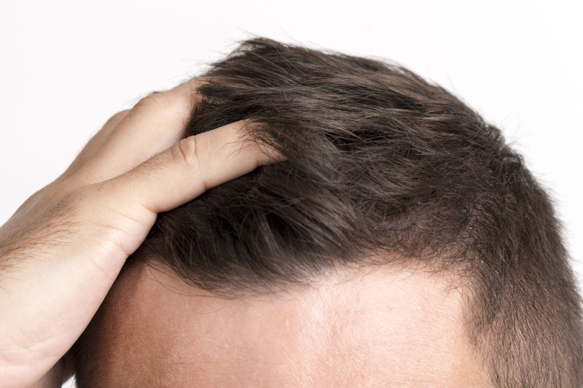 New Study: Air Pollution May Lead to Hair Loss